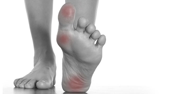 Guide to blisters